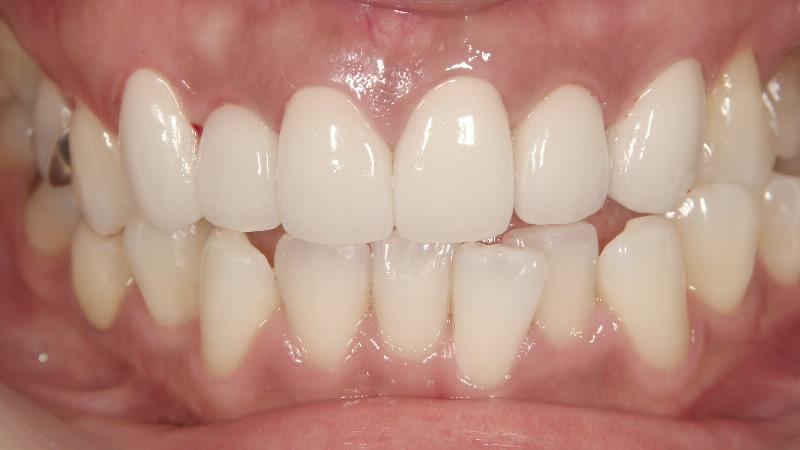 歯 値段 セラミック