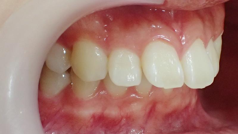 出っ歯を治したい 審美性を大切にした歯科治療ならホワイトホワイト