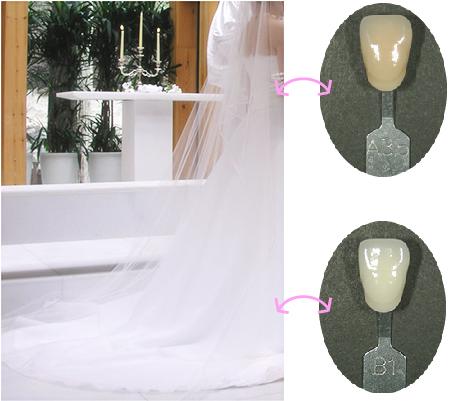 ウェディングドレスに映える白くてきれいな歯❤世界で一番カワイイ花嫁に!